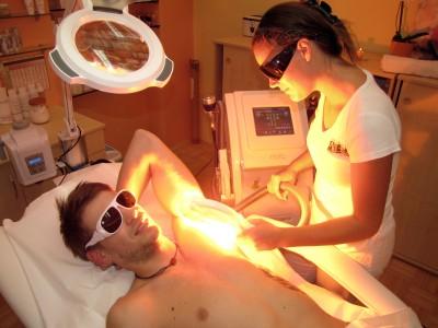 IPL+RF lasersko odstranjevanje dlačic ART-PE